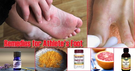17 Home Remedies To Treat Athlete's Foot