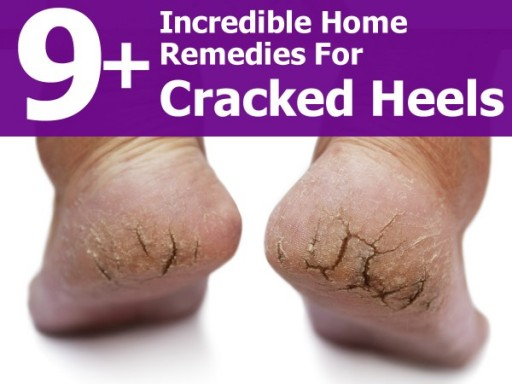 9 Incredible Home Remedies To Help Cracked Heels