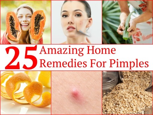 25 Easy Ways To Get Rid OF Embarrassing Pimples Fast At Home