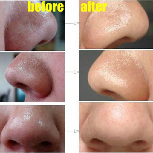 How To Easily Remove Deep Blackheads On Your Nose
