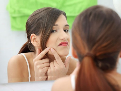 How To Get Rid Of Acne 2