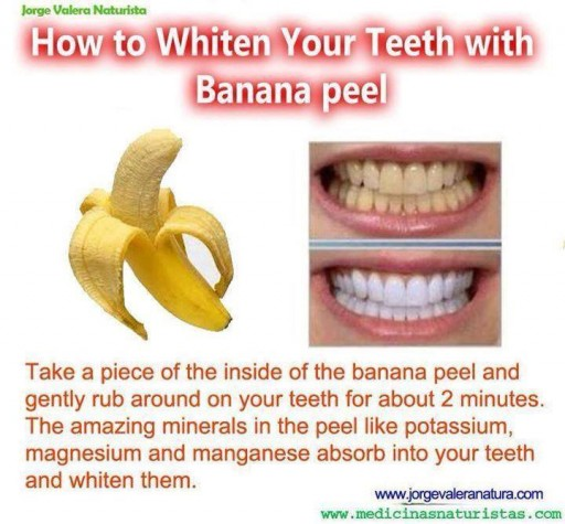 10 Natural Ways For Teeth Whitening 3
