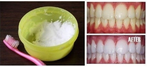 10 Natural Ways For Teeth Whitening