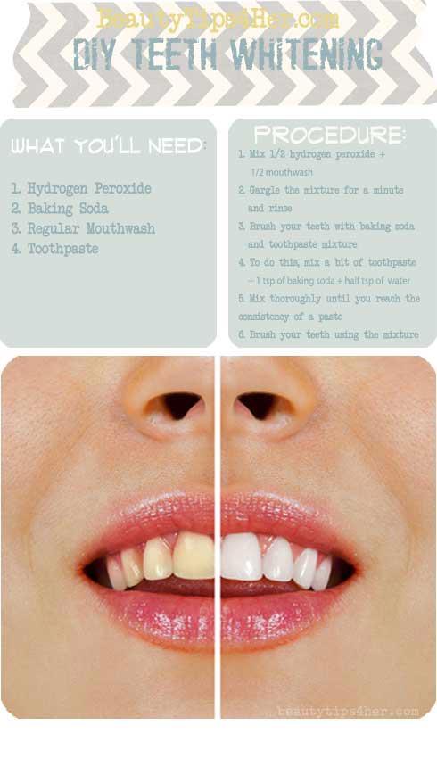 DIY Teeth Whitening 1